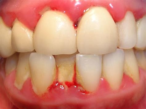 gingivitis treatment gingivitis causes symptoms treatments healthguru