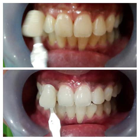 Pemutihan Gigi Di Klinik Swasta pemutihan gigi bleaching audy dental 5 audy dental