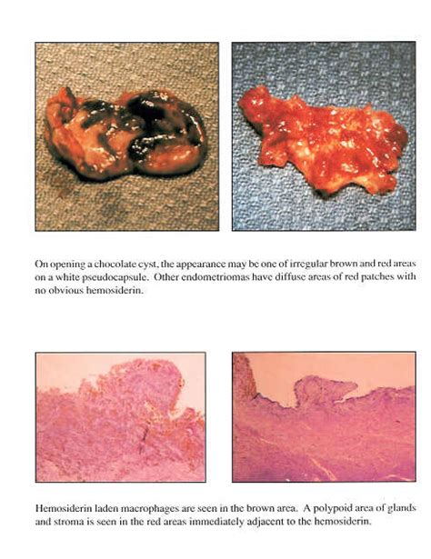 sle of uterine lining uterine lining biopsy procedure