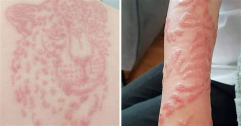 henna tattoo chemical burn s warning black henna tattoos after sons left