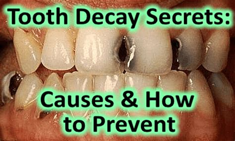 how to stop teeth a secret on how to prevent tooth decay dentist rancho