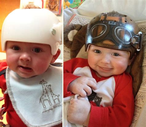 helmet design for babies artist decorates babies head shaping helmets with cute