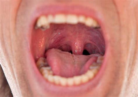 massive tattoo infection swollen uvula causes symptoms and remedies