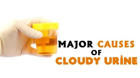 Could Cloudy Urine Be A Sign Of Detoxing by Major Causes Of Cloudy Urine