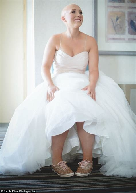 brides with alopecia bride with alopecia goes bald on her wedding day daily