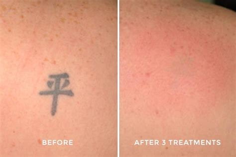 laser tattoo removal faq frequently asked questions about laser removal