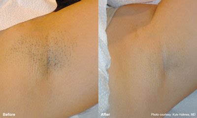 laser hair removal in centurion clinic profile mint laser and beauty clinic in pretoria
