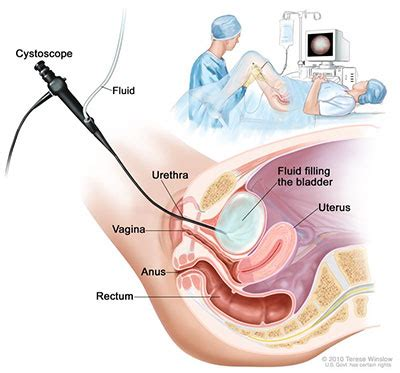 Kidney Infection Urology Care Foundation What Is Cystoscopy