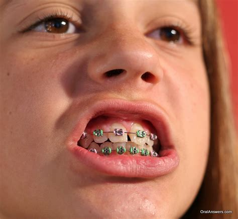best braces 60 photos of teenagers with braces answers