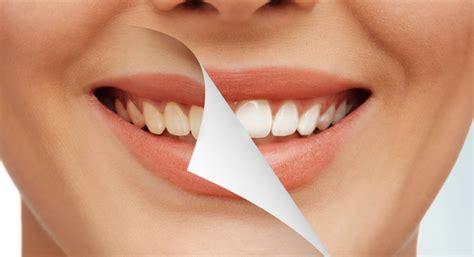 zoom teeth whitening works