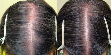 can african american women use rogaine topical minoxidil females before after photos hair
