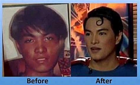 plastic and cosmetic surgery classic reprint books superman fanatic has plastic surgery to look more like