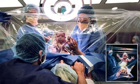 opting for c section australian mums opting for clear drapes to watch c section