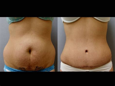 can i have a tummy tuck after c section railway family center family recreation