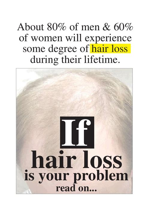 the amazing solutions the amazing solution for hair loss in men segals solutions