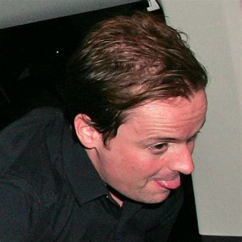 declan donnelly hair transplant 42 celebrity men who are less bald than they used to be