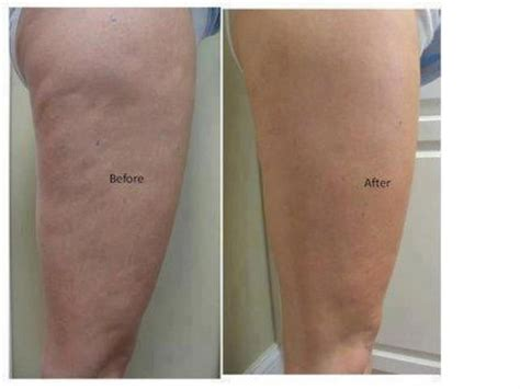 This Cellulite Works by Look At This Before And After Picture She Used The It