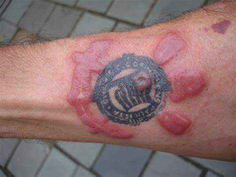 tattoos can cause severe adverse reactions in the skin 1