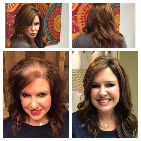 salons that specialize in womens thinning hair chicago 25 b 228 sta alopecia in women id 233 erna p 229 pinterest