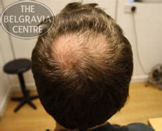to bald hair cut net crown area is left longer such male hair loss all you need to know