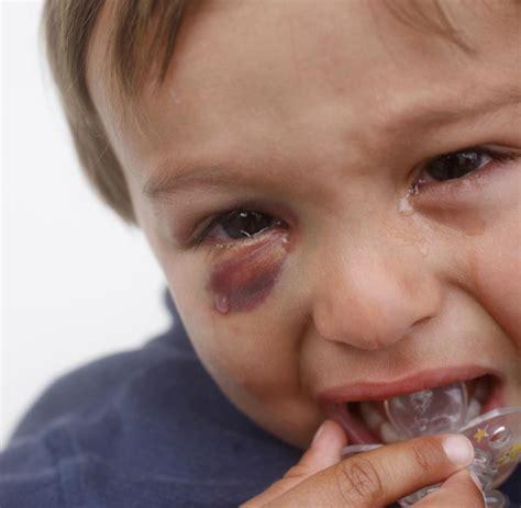 wann werden kinder eingeschult bluterguss wann blaue flecken wirklich gef 228 hrlich werden