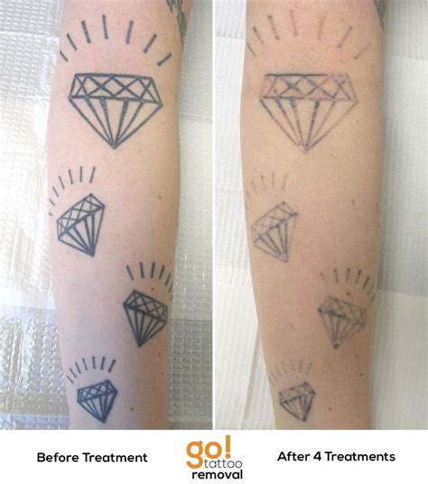 laser tattoo removal sleeve diamonds don t really shine forever after 4 laser