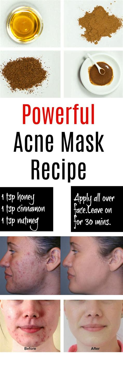 best 25 acne home remedies ideas on pimple