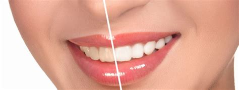 frequently asked questions  teeth whitening