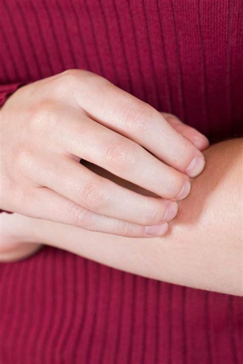 itching   rash     treatments