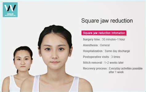 the square jaw line square jaw plastic surgery in korea wonjinbeauty com