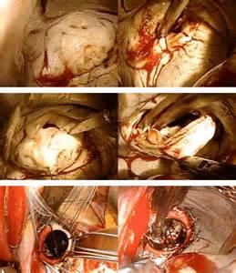 Heart valve diseaset keio university cardiovascular surgery