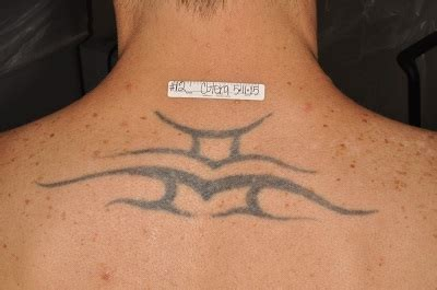 tattoo removal in kansas city removal treatment overland park removal