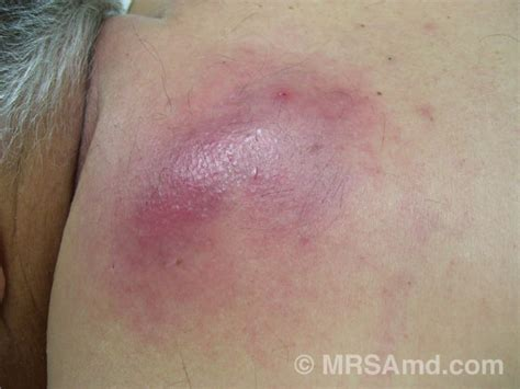 mrsa after c section image gallery large abscess