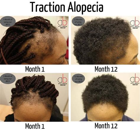 can alopecia patients where braids black hair styles for with alopecia traction alopecia