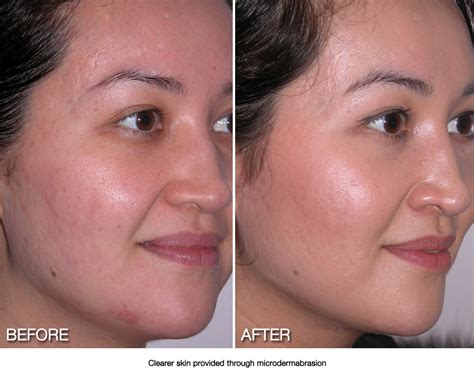 1000 images about before and after microdermabrasion pics