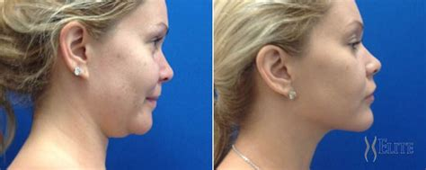 double chin tuck sew does laser lipo work on neck jidimakeup com