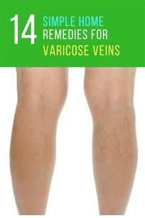 home remedies for varicose veins home remedies for varicose veins 17 ways to get rid of
