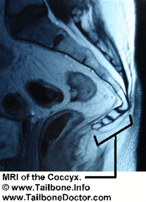 pilonidal cyst mri did mri show the tailbone tailbone doctor