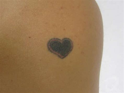 tattoo removal mississauga patient 3 qesthetics