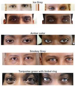 permanent eye color change cost bright ocular offers a permanent eye color change