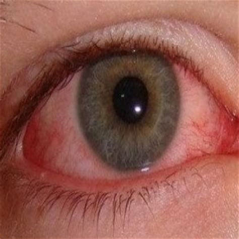 eye infection treatment 7 home remedies for eye infection treatments cure for eye infection
