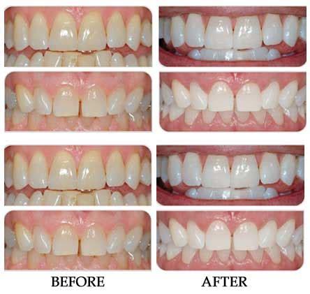 bleaching teeth  home  pregnant homemade ftempo