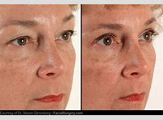 Eyelid surgery - cosmetic. Causes, symptoms, treatment ... Home Treatment For Baggy Eyes
