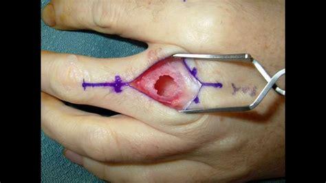 benign tumor on live surgery enchondroma cartilage benign tumor of the finger