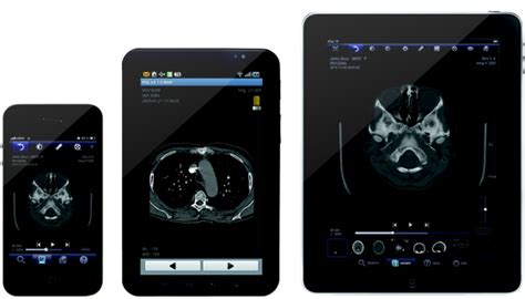 mobile view equipment information with wizmedic