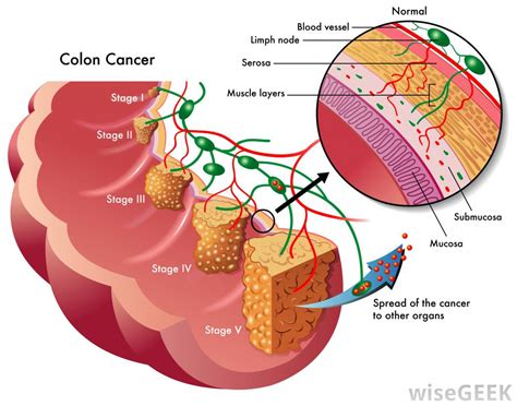 diagram of colon cancer what is a pedunculated polyp with pictures
