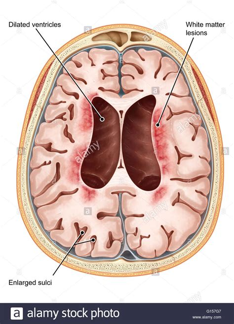transverse brain section an illustrated transverse section of the brain of a