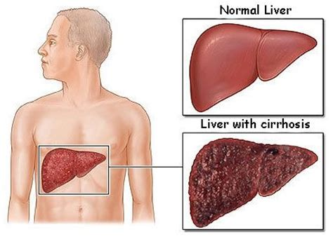 Stewart Has Liver Disease 2 by 25 Best Liver Damage From Images On