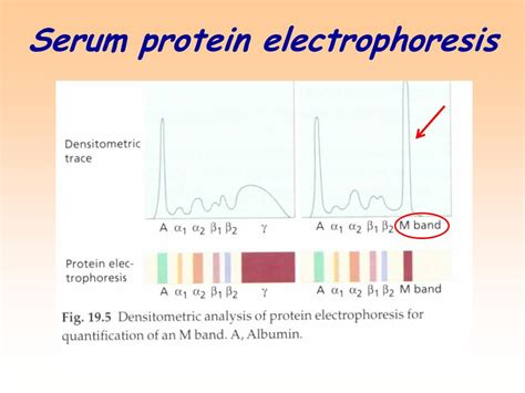 protein electrophoresis serum investigation of humoral immunity ppt