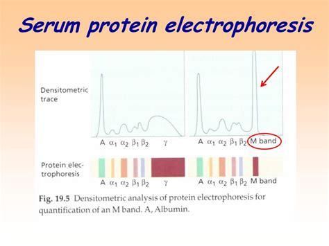 s protein electrophoresis interpretation investigation of humoral immunity ppt